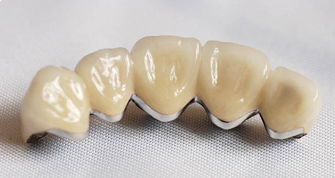 Ponte dentale di metallo e ceramica