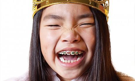 Apparecchio ortodontico per bambini