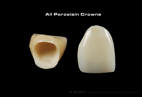 Ceramic Corona