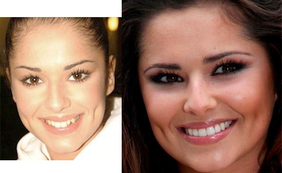 20 celebrità che devono i loro sorrisi smaglianti allodontoiatria
