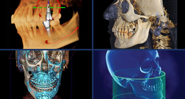 3D Dental X-Ray