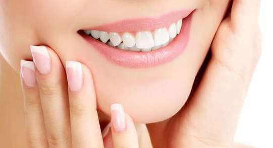 Sbiancamento dei denti (un arco)