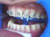 Apparecchio ortodontico di ceramica