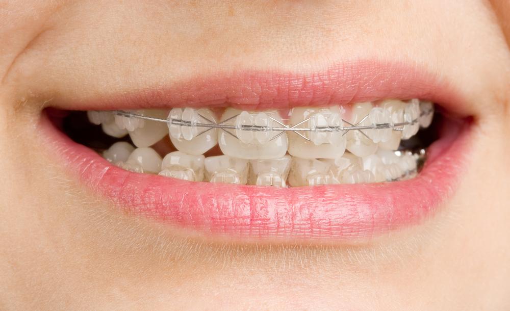 Raddrizzare i denti storti croazia dentisti