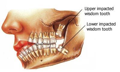Saggezza rimozione dei denti