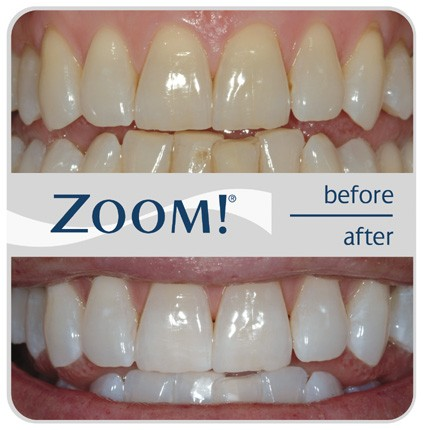 Zoom! Sbiancamento dei denti